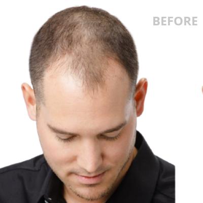Deze foto toont een jongeman met erg dun haar op het voorhoofd. Hair TopUp zorgt voor dikker haar bij mannen en is zeer geschikt om deze situatie op te lossen