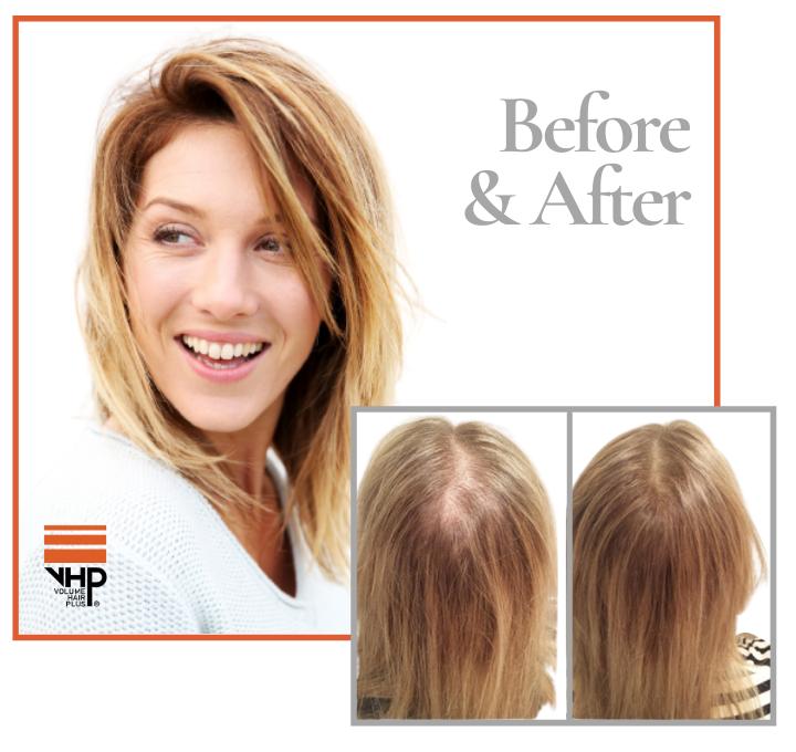 De grote kalende plek met dun haar is stap voor stap veranderd in veel dikker haar. Zie hier het resultaat wanneer de Hair Revive Combo Set frequent wordt gebruikt. Weer veel voller haar en een gelukkige dame.