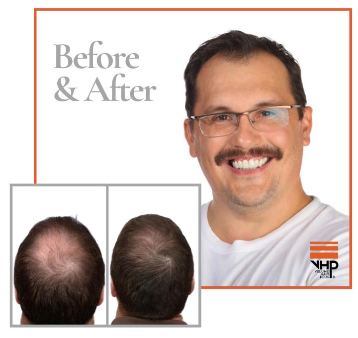 Haaruitval stoppen en nieuwe haargroei stimuleren zijn de belangrijkste kenmerken van de Hair Revive Combo set. De man op de foto's kan zijn geluk niet op